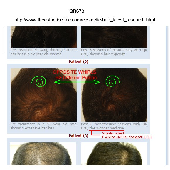 hair loss board entry page category order last answer descasc desc