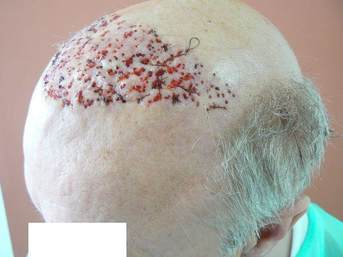 Your business! Hair plugs trypophobia will not