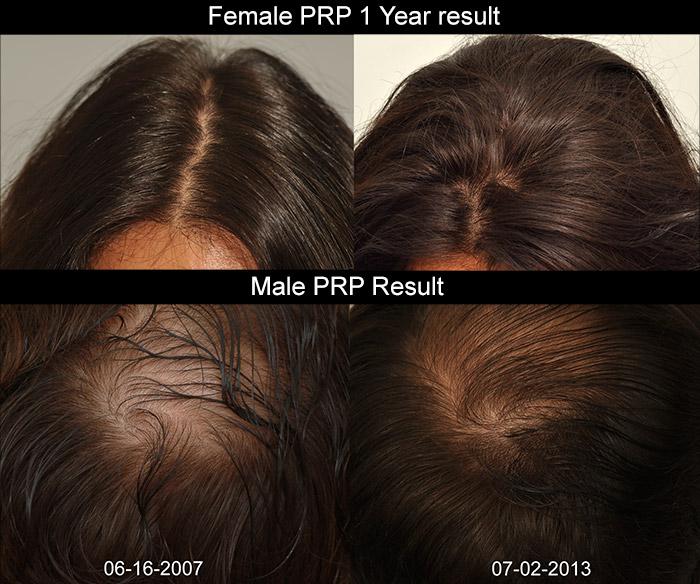 Propecia improve skin