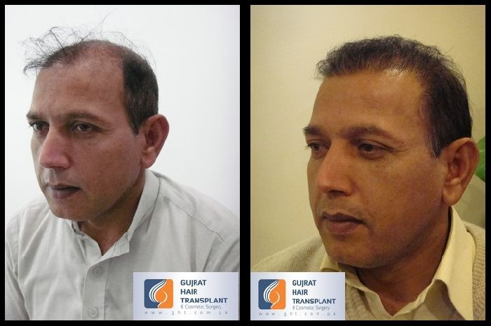 Hair Transplant Results After 6 Months Rob S Before And