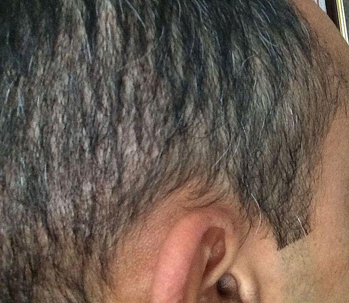 Levitra Hair Loss