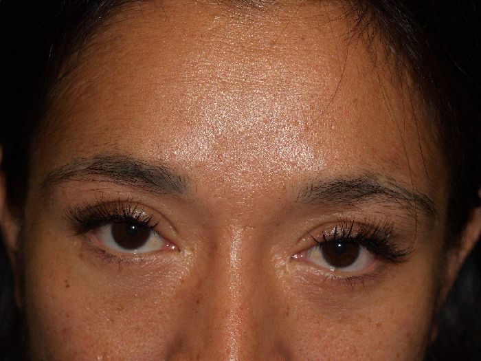 Dr Epstein Eyebrow Eyelash Transplant Hair Transplant