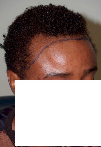 Keyword Prozac And Hair Loss