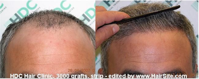 Пересадка волос в ереване