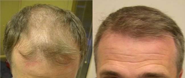 Dr. Jones - 2000 grafts Strip, 6 months