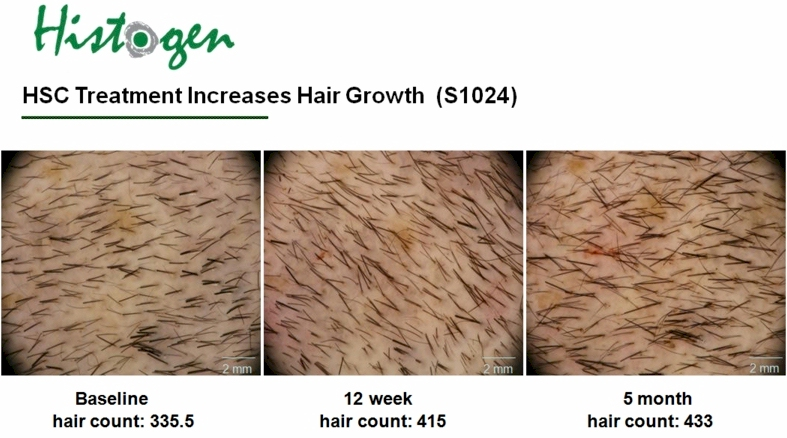 histogen hair stimulating complex release date | lajoshrich com