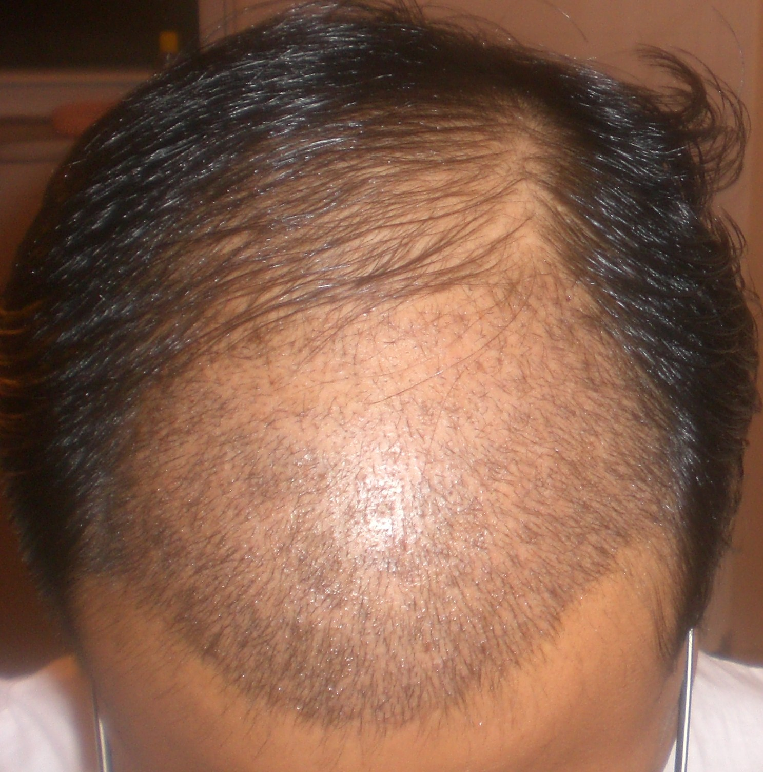 Hair Growth After 6 Months Front Area Crown