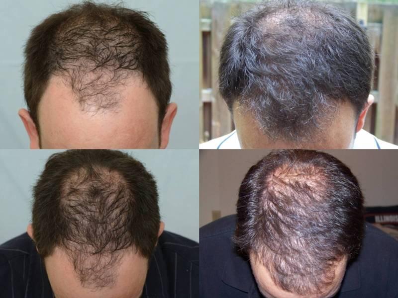 Body hair transplant in bangalore dating