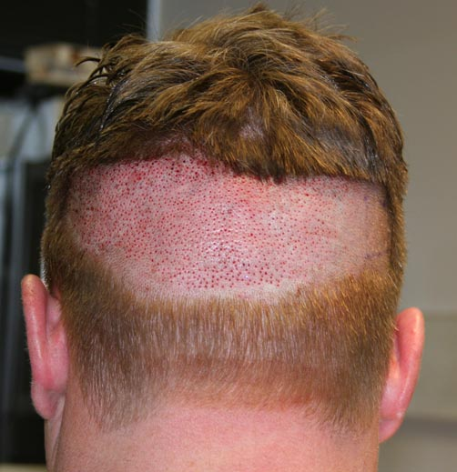 hair transplant real review forum image
