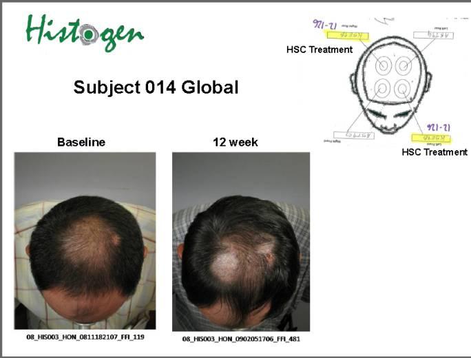 Replicel: Huge investment sc_am - Hair Multiplication - HairSite