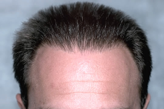 Accutane Side Effects Hair Loss