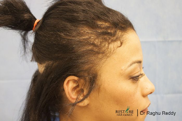 Fue By Dr Reddy 27 Y Old Lady Hair Loss Bec Of To Hair Extensions