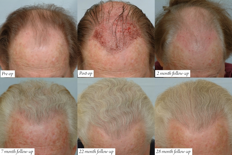 Image result for Does hair grows after hair transplant surgery?
