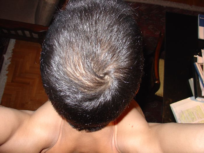 Causes For Hair Loss Propecia