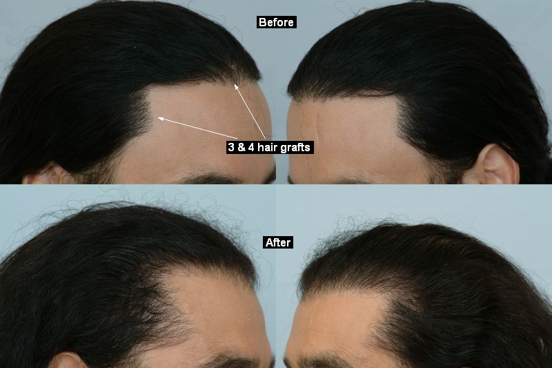 The mature hairline, explained