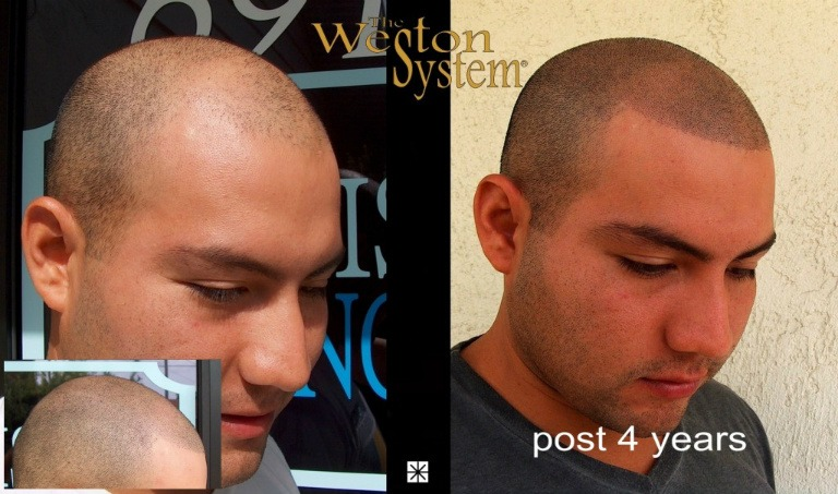 Hair Follicle Replication Scalp Micropigmentation
