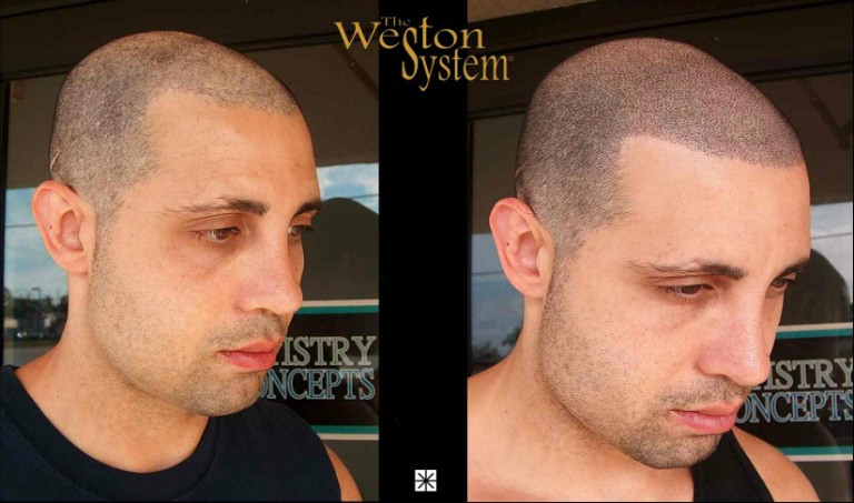 Weston Hair Restoration