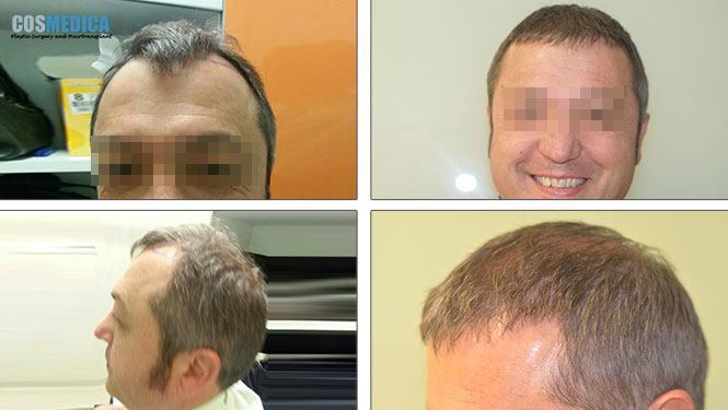Cosmedica Hair Transplant Cost Turkey  Hairsitecom-8687