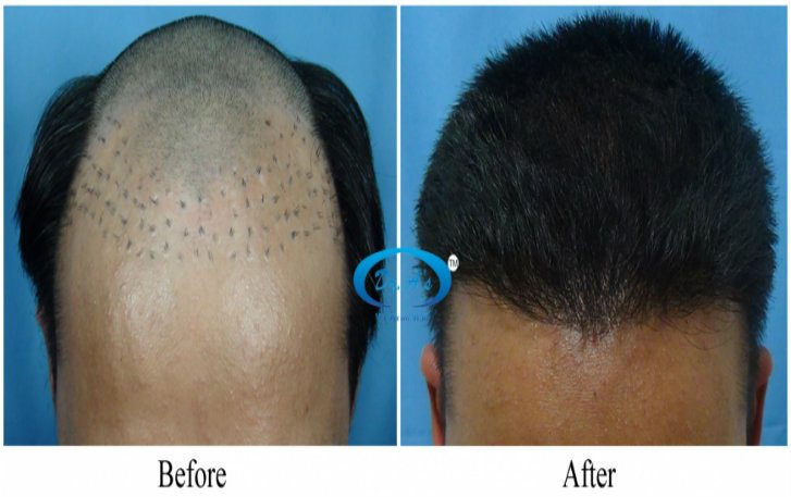 a-dr-arvind-poswal-hair-transplant-tourism-results-3