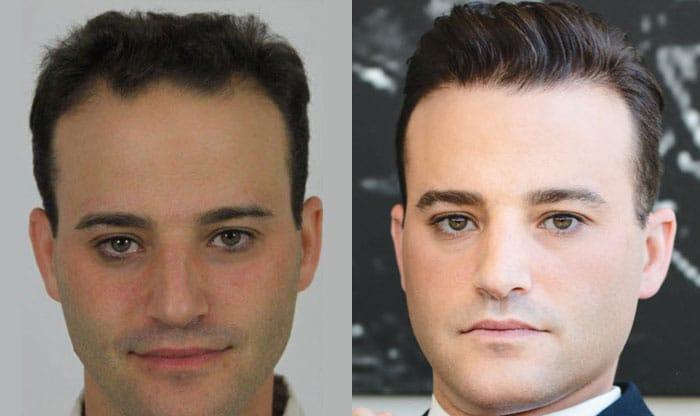 Alviarmai Hair Transplant3