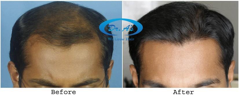 Dr Arvind Hair Transplant Result 3