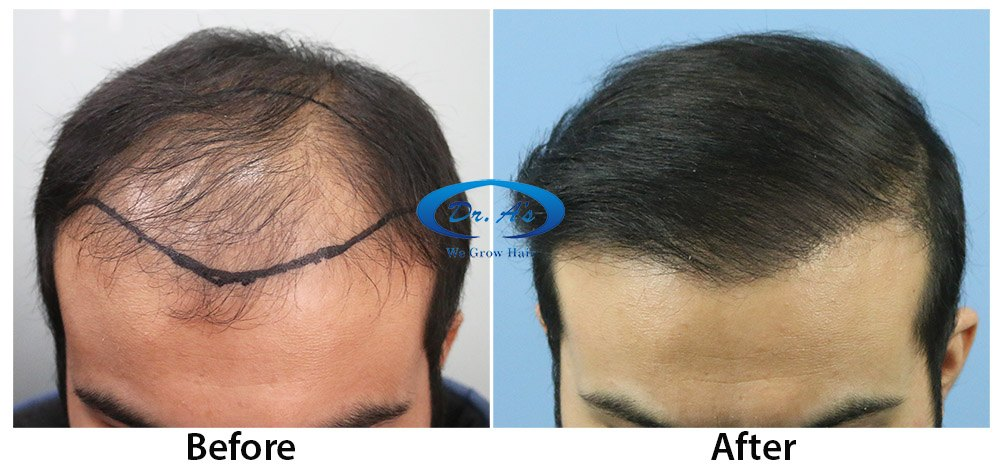 Dr Arvind Poswal Hair Transplant India 15