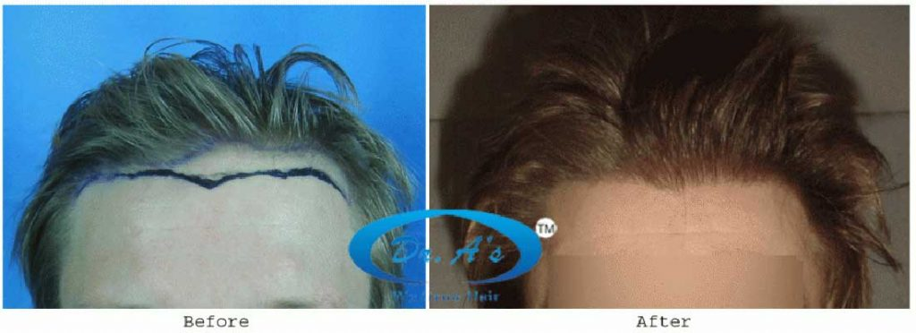 Dr Arvind Poswal Hair Transplant India 26