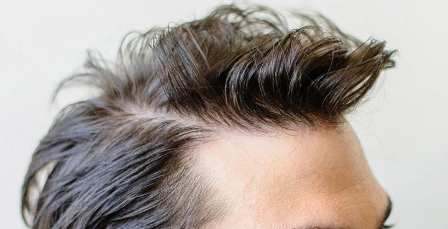 Dr Baubac Hair Transplant Results 11