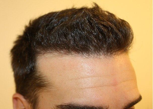 Dr Baubac Hair Transplant Results 18