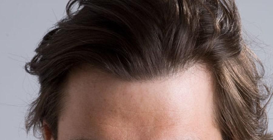 Dr Baubac Hair Transplant Results 2