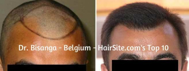 dr bisanga hair transplant reviews belgium