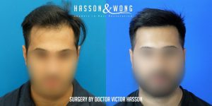 Dr. Hasson FUE 2593 grafts