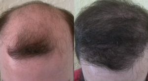 dr woods hair transplant result