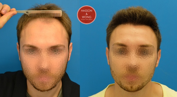 Hasson And Wong Hair Transplant Ranking Hairsite Com