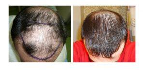 hdc hair transplant reviews cyprus