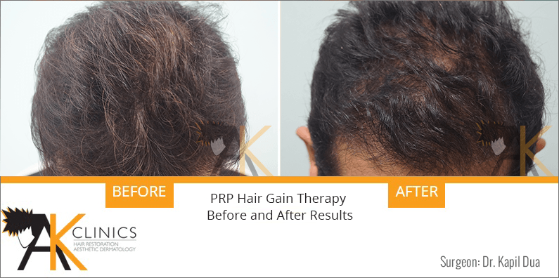 prp-hair-therapy-results-4