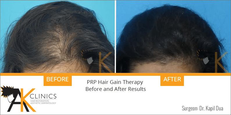 prp-hair-therapy-results-9